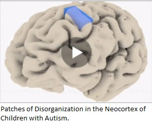 Patches of Disorganization in the Neocortex of Children with Autism.