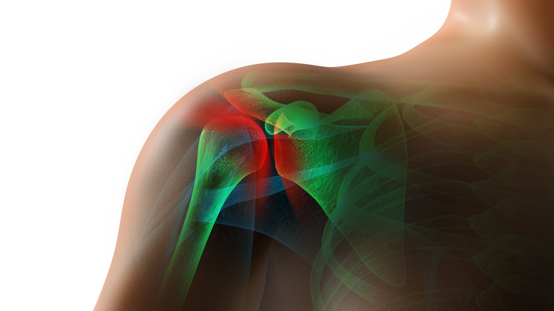Nutritional treatment for rotator cuff tears (Part I)