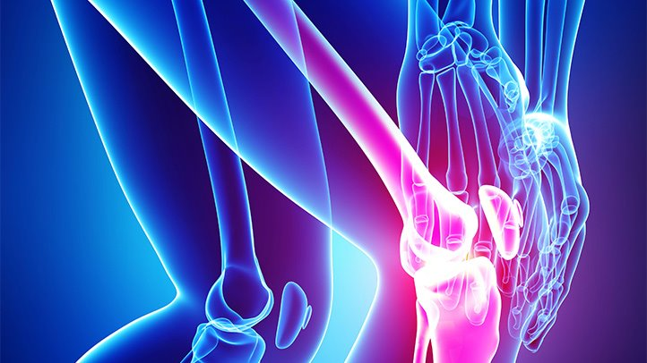 Natural Breakthroughs in the Treatment of Osteoarthritis