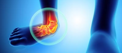 Treating ankle injuries without drugs