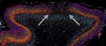 Postmortem analysis of autistic brain tissue revealed patch-like areas of disorganized neurons. Arrows show a patch of decreased or absent expression of genetic markers across multiple layers of the dorsolateral prefrontal cortex.
